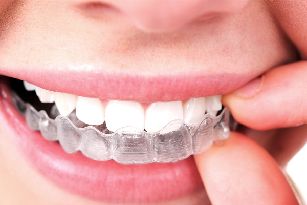 Beneficios de la ortodoncia invisible. Clínica Saludalia Dental